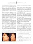 nonsurgical tightening of skin laxity - makro-med - Page 5