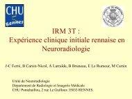 IRM 3T : Expérience clinique initiale rennaise en Neuroradiologie