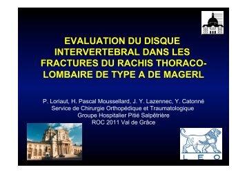 evaluation du disque intervertebral dans les fractures ... - ClubOrtho.fr