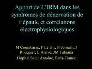 Apport de L'IRM dans les syndromes de dénervation de l'épaule et ...