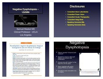 Negative Dysphotopsia