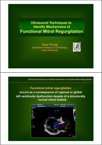Functional Mitral Regurgitation