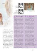 Arthrose - Gesundheitsnetz Starnberg Wolfratshausen - Seite 5