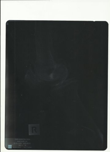 66_Knee report - X Ray.pdf - Surgery in India