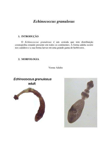 Viermi echinococ, Noutati medicale