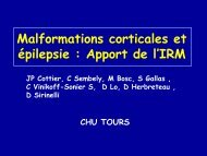 Malformations corticales et épilepsie : Apport de l'IRM