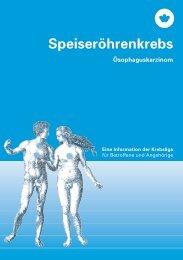 Speiseröhrenkrebs – Eine Information der ... - Krebsliga Schweiz