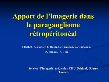 Apport de l'imagerie dans le paragangliome rétropéritonéal