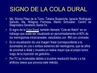 SIGNO DE LA COLA DURAL - Congreso SORDIC