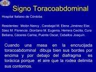Signo Toracoabdominal - Congreso SORDIC