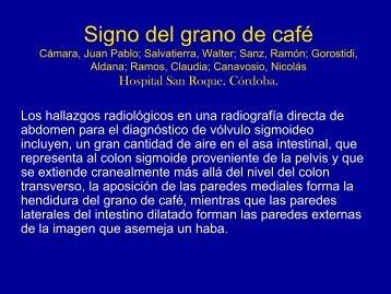 Signo del grano de cafe - Congreso SORDIC