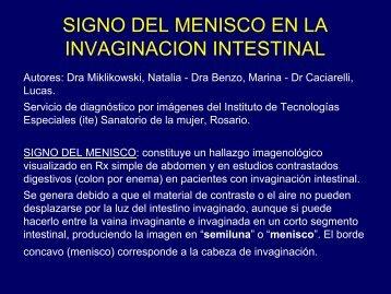 signo del menisco en la invaginacion intestinal - Congreso SORDIC