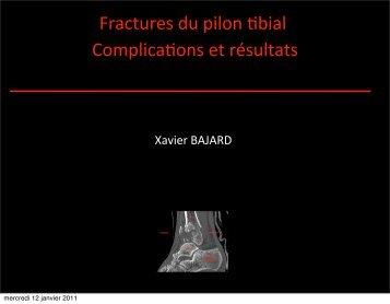 Complications des fractures du pilon tibial - ClubOrtho.fr