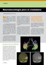 Neurotecnología para el ciudadano