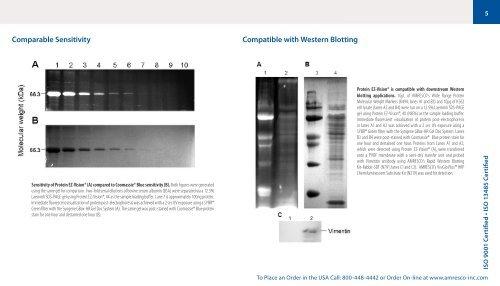 4 Protein Electrophoresis