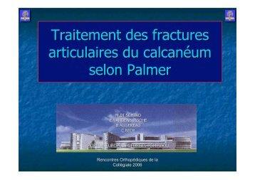 Fractures calcaneum traitement selon Palmer M. Di ... - ClubOrtho.fr