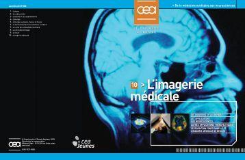 L'imagerie médicale 10 >L'imagerie médicale - CEA