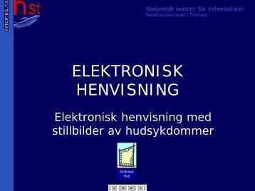 ELEKTRONISK HENVISNING - Nasjonalt senter for telemedisin