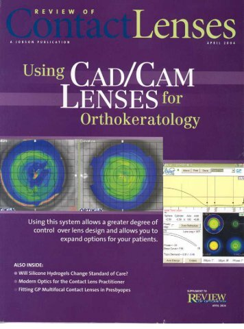 """Using CAD/CAM Lenses for Ortho Keratology"" by Ken Maller OD"