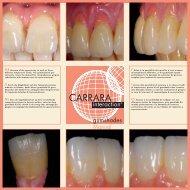 Carrara Interaction gumshades Kit - Elephant Dental
