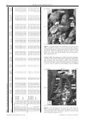 10Be ages of late Pleistocene deglaciation and Neoglaciation in the ... - Page 4