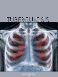 tuberculosis - CSIR