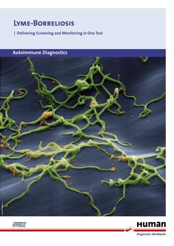 Lyme-Borreliosis - LAB MARK