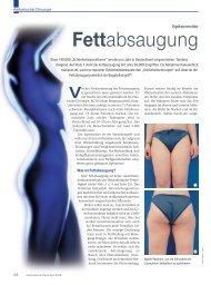 Fettabsaugung - Plastische Chirurgie Dr. Reus