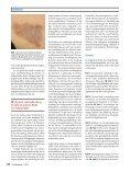 Nebenwirkungen und Komplikationen in der Therapie mit ... - Springer - Seite 6