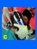 Rimozione del casco - Formazione In Emergenza Sanitaria - Page 5