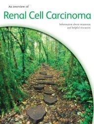 Renal cell carcinoma (RCC) - Torisel