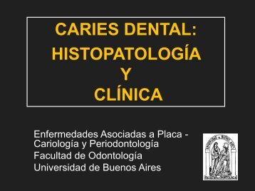 CARIES DENTAL ASPECTO MICROSCOPICO - Facultad de ...