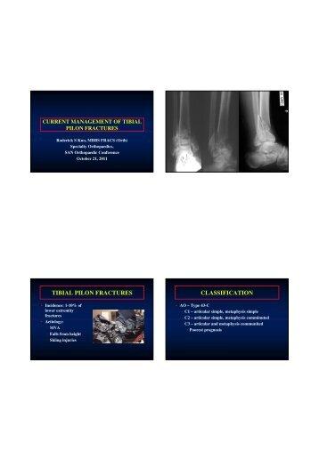 Fixateur externe fractures du pilon tibial - Tibial plafond fracture classification ...