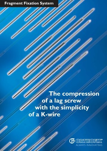 The compression of a lag screw with the simplicity of ... - Osteosyntese