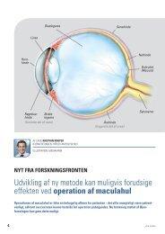 operation af maculahul - Øjenforeningen Værn om Synet