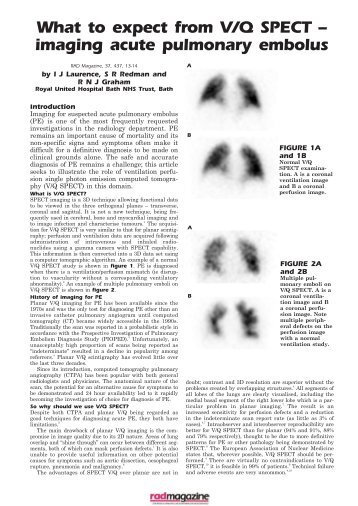 The incorporation of SPECT functional lung imaging into