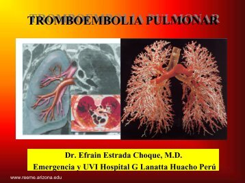 TROMBOEMBOLIA PULMONAR - Reeme.arizona.edu