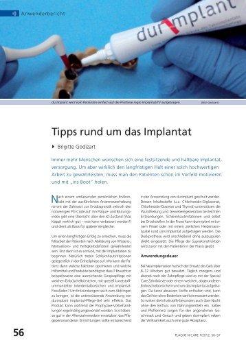 Tipps rund um das Implantat - Lege artis