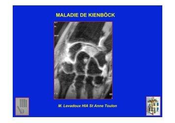 Maladie de Kienbock M. Levadoux - ClubOrtho.fr