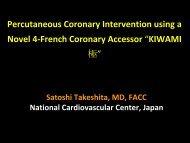 Percutaneous Coronary Intervention using a Novel 4 French