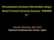 Percutaneous Coronary Intervention using a Novel 4 French