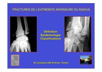 FRACTURES DE L'EXTREMITE INFERIEURE DU ... - ClubOrtho.fr