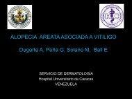 ALOPECIA AREATA ASOCIADA A VITILIGO Dugarte A, Peña G ...