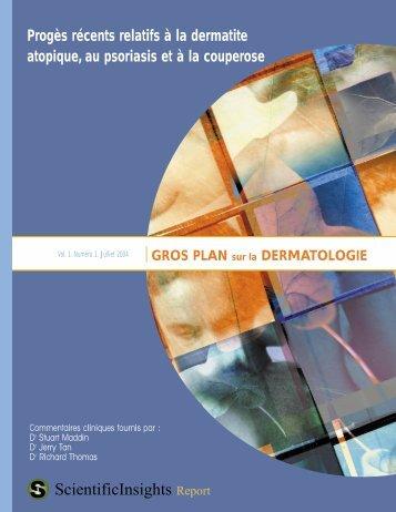 Progès récents relatifs à la dermatite atopique ... - Skin Therapy Letter