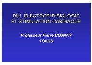 Traitements du signal ECG, Holter