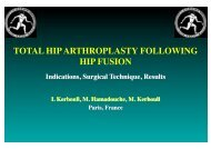 total hip arthroplasty following hip fusion! - ClubOrtho.fr