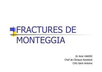 fracture de monteggia Dr HARIRI - ClubOrtho.fr