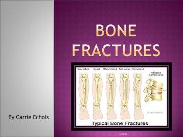 Bone fractures - Techno Ayurveda