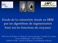 Etude de la volumétrie rénale en IRM par un algorithme de ...