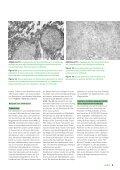 • Infekte und Biologika • Infections et médicaments biologiques ... - Page 5
